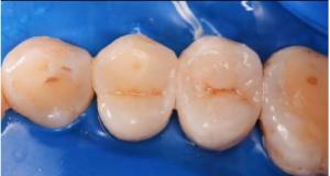 DM_il dentista moderno_Composizione e caratteristiche dei compositi dentali