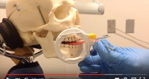 DM_il dentista moderno_bite wing_