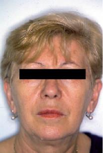 1. Fotografia del volto all'inizio del trattamento.