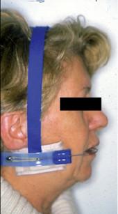 4. Visione durante il trattamento ortodontico con trazione extra-orale.