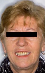 6. Fotografia del volto a fine trattamento.