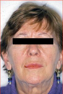 8. Fotografia del volto al controllo a 5 anni di distanza.