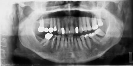 10. Ortopantomografia al controllo a 5 anni di distanza.
