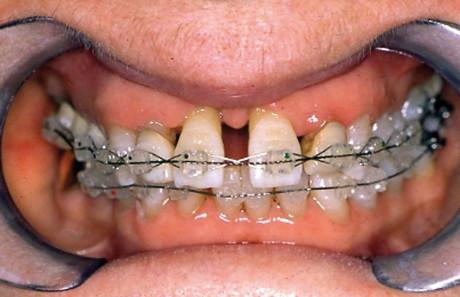 5. Visione intra-orale durante il trattamento ortodontico.