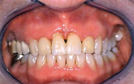 7. Visione intra-orale a fine trattamento.