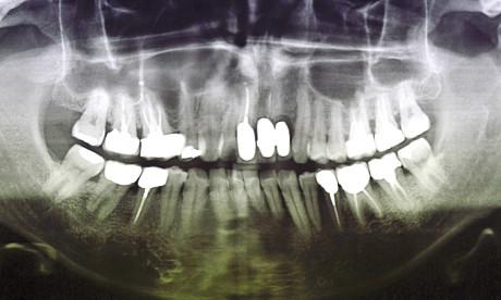 Caso 2 12-13. Visione frontale e radiografica della protesi incongrua del gruppo frontale superiore.