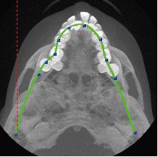 3. Visione occlusale dei mascellari superiori: si noti l'inclusione di 11.