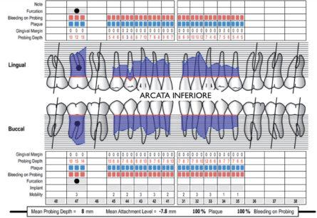 5-6. Cartella parodontale rilevata durante la seduta di anestesia generale a causa di mancata collaborazione nelle sedute pre-operatorie (www.periodontalchart-online.com - Department of periodontology, University of Bern, Switzerland).