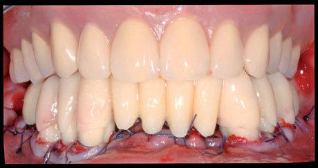 13. Ribasatura (Viscogel®, Dentsply International INC., York, PA, USA) e posizionamento di una protesi mobile totale immediata in arcata superiore.