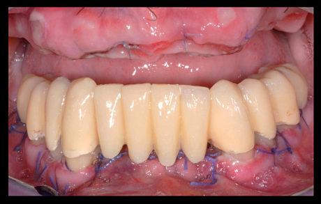 14. Rimozione dei punti di sutura eseguita a distanza di 7 giorni dall'intervento.