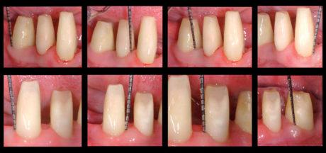 16. Sondaggio parodontale eseguito a distanza di 12 settimane dall'intervento, in preparazione al confezionamento del restauro protesico definitivo.