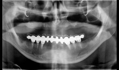 18. Ortopantomografia di controllo eseguita a distanza di 36 mesi dalla cementazione del restauro protesico definitivo in arcata inferiore.