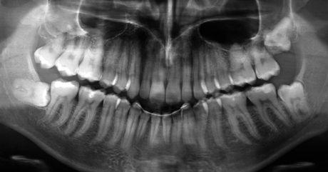 1. Ortopantomografia iniziale richiesta per valutare l'estrazione di 48.