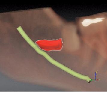 11-14. Con il programma di ricostruzione è possibile eseguire una simulazione virtuale delle fasi di odontotomia ed estrazione.
