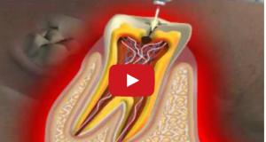 DM_il dentista moderno_carie_devitalizzazione_polpa dentale