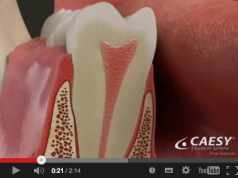 DM_il dentista moderno_necrosi dentale_periodontite apicale acuta_ascesso apicale_granuloma_cisti odontogena