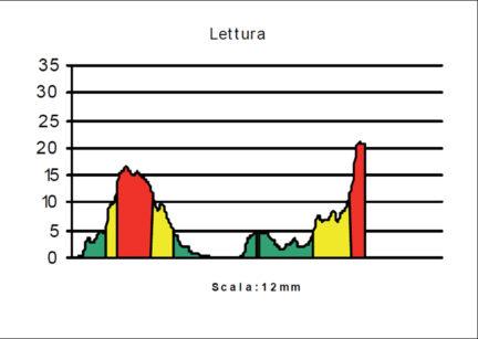 9. Il corrispondente grafico di lettura: si osservi come la sonda evidenzia i due strati d'osso corticale a maggiore densità intercalati da uno intermedio, trabecolare, a densità minore