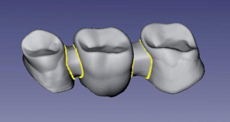 2. Difetti di mesh autointersezioni e pieghe di superficie