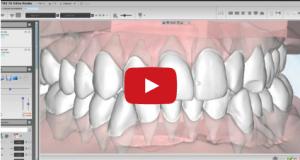 DM_il dentista moderno_malocclusioni_diagnosi in ortodonzia