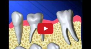 DM_il dentista moderno_mantenitore di spazio_leeway space