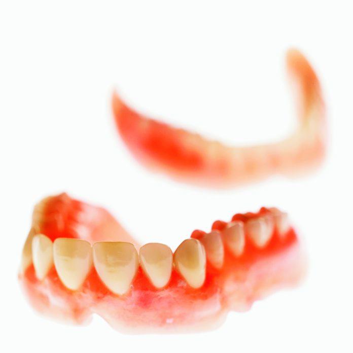 DM_il-dentista-moderno_paziente-totalmente-edentulo-protesi-totale-prima-impronta- overdenture su impianti_resine acriliche