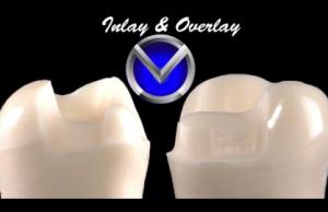 DM_il dentista moderno_restauri indiretti