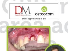 DM_il dentista moderno_corsi_simion