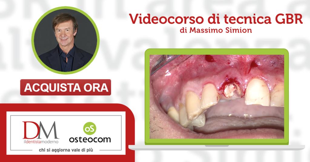 Simion Osteocom il dentista moderno