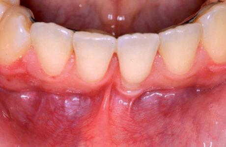 10. Splintaggio linguale con filo ortodontico (a breve rimosso) e trazione del frenulo vestibolare in visione occlusale
