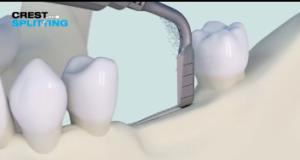 DM_il dentista moderno_Intervento di split crest ai fini della riabilitazione implantareDM_il dentista moderno_Intervento di split crest ai fini della riabilitazione implantare