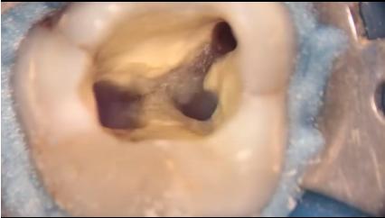 DM_il dentista moderno_calcificazioni canalari_endodonzia
