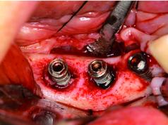 DM_il dentista moderno_impianti dentali_controindicazioni relative
