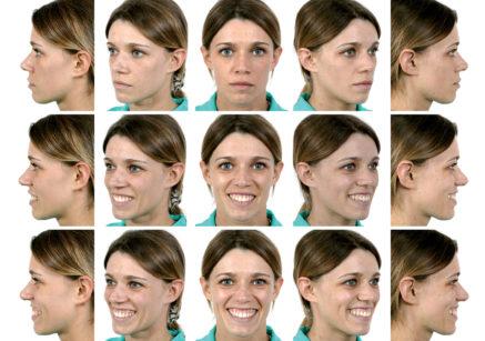 5. Lo studio del sorriso prevede l'utilizzo di foto del viso e del sorriso (di posa, divertito-pieno) e di brevi video