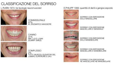 6. Nella tabella due delle più comuni classificazioni del sorriso, quella di L. Rubin e quella di E. Philipp
