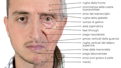 9. Nella simulazione fotografica sono elencati gli effetti dell'invecchiamento sul volto, dalle rughe della fronte alla ptosi di grasso e pelle del bordo mandibolare