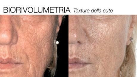 12. Effetto di miglioramento dell'aspetto superficiale della cute dopo un mese dal trattamento con filler biorivolumetrico