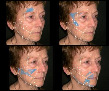 13. Rappresentazione schematica delle possibili mappature del volto del paziente per trattamento con ago cannula