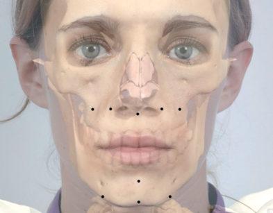 15. Schema dei punti di ingresso per la tecnica ad accesso intraorale