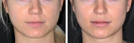 """17. Trattamento estetico di paziente giovane con approccio """"beautification"""": filler con ago su piega naso-geniena, labbra e solco mentale"""