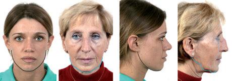 21. Evidenziazione su vista frontale e di profilo della perdita degli archi primari (linea continua) e degli archi secondari (linea tratteggiata) in un viso anziano