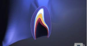 DM_il dentista moderno_amelogenesi imperfetta