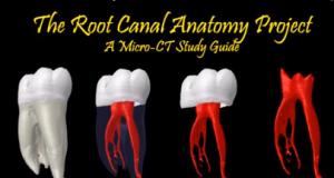 DM_il dentista moderno_endodonzia_variazioni anatomiche_anantomia canalare