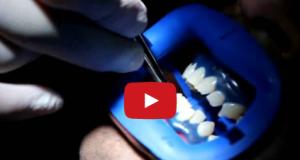 DM_il dentista moderno_sbiancamento dentale_indicazioni e controindicazioni