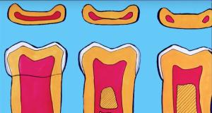 DM_il dentista moderno_terapia canalare_variazioni anatomiche complicanze