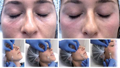 Caso 1 biorivolumetria Prima e dopo il trattamento della regione infra-orbitale e solco-lacrimale con biorivolumetrico e cannula 25G