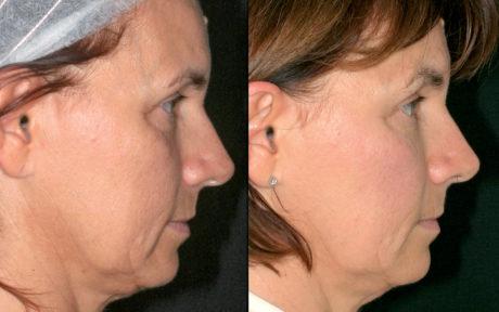 Caso 3 biorivolumetria Prima e dopo il trattamento biorivolumetrico del viso con cannula 27G nella visione frontale e laterale. I cambiamenti richiesti sono lievi, non si modificano i volumi ma si migliorano il supporto profondo e la qualità dei tessuti