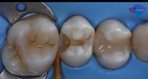 DM_il dentista moderno_ seconda classe di Black_premolare