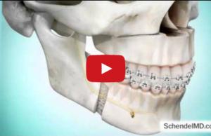 DM_il dentista moderno_LeFort I e uvulopalatofaringoplastica nel trattamento chirurgicp delle OSAS