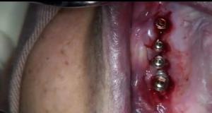 DM_il dentista moderno_Perimplantite approccio chirurgico e protesico