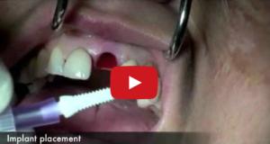 DM_il dentista moderno_implantologia_estetica_zirconia
